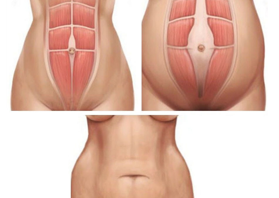 Rectal diastasis (Diastasis Recti) - split abdominal muscles after pregnancy